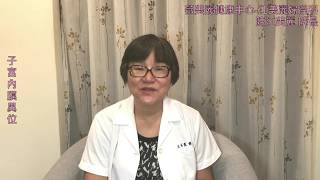 是女生都要知道:70%的經痛都是子宮內膜異位造成的!?子宮內膜異位還會造成什麼問題?江美麗醫師告訴您