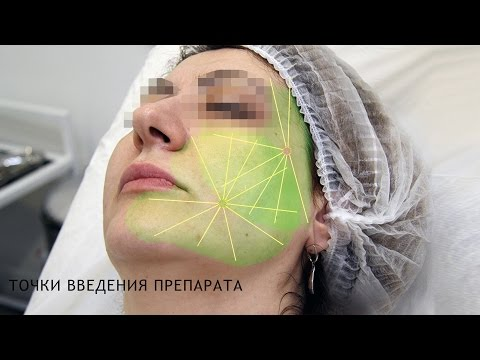 Биорепарация - увлажнение кожи. Аналог биоревитализации.