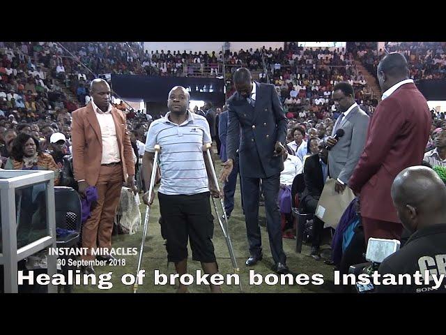Astonishing Healing! Emmanuel Makandiwa Heals Broken Bones instantly in the name of Jesus