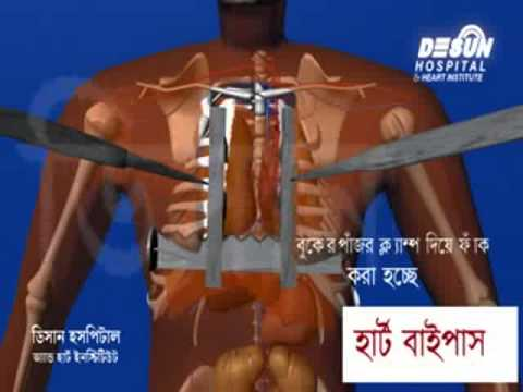 Heart Bypass Surgery Hospitals in India