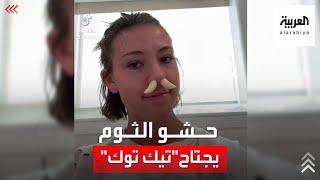 فيديو لحشو الثوم في الأنف يجتاح