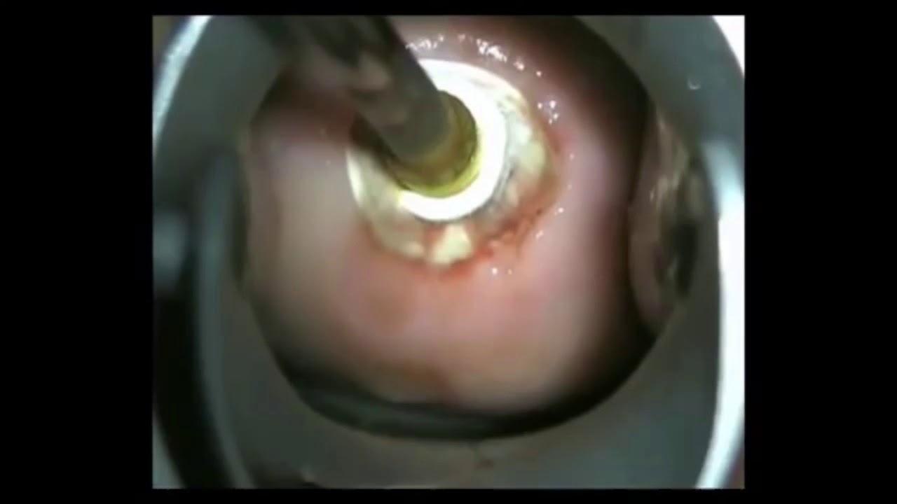 Uşaqlıq boynu eroziyasının maye azotla kriodestruksiyası