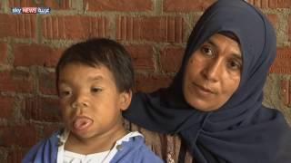 محمد عبد الرحمن يعاني حالة طبية نادرة