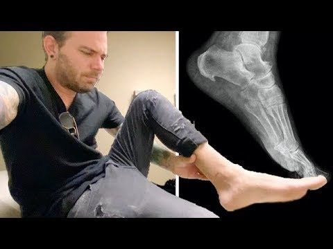 I FRACTURED MY FOOT (Had to get an X-Ray)