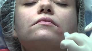 Фото «Улыбка Мона Лизы» — подъем опущенных уголков рта за 1 процедуру