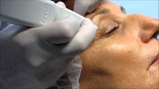 Non surgical Blepharoplasty