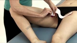 Návod na tejpování velkého přitahovače (vnitřní stehno) - musculus adductor magnus