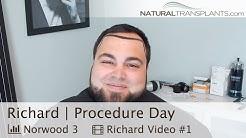 Hair Loss Treatment | Advanced Hair Restoration Alexandria, Virginia | Procedure (Richard)