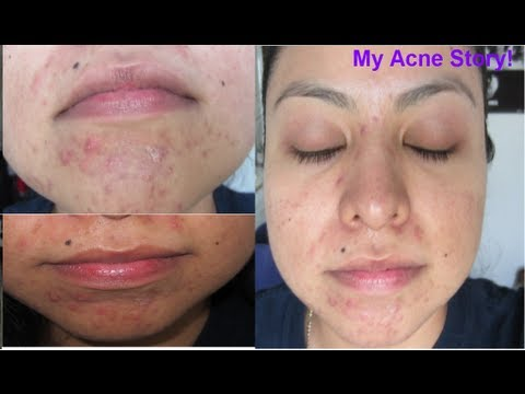 acne after coming off steroids