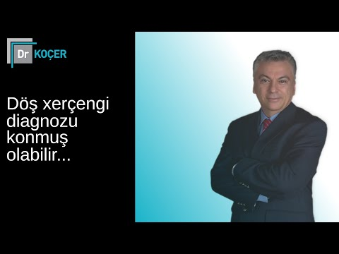 Bakıda sizə süd vəzi xərçəngi...