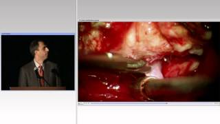 AANS Operative Nuances 3D Session During Miami Meeting: Part II