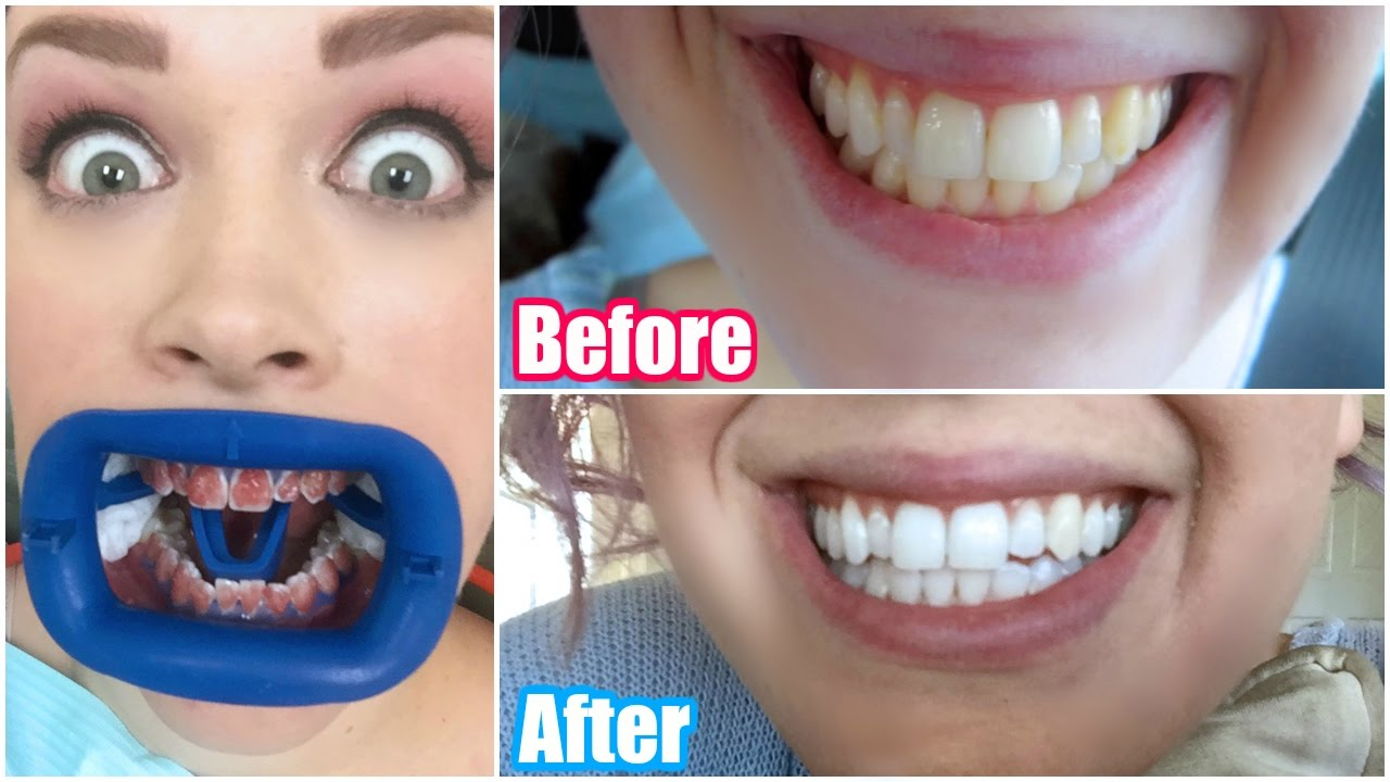 My Professional Teeth Whitening Experience Before After Youtube