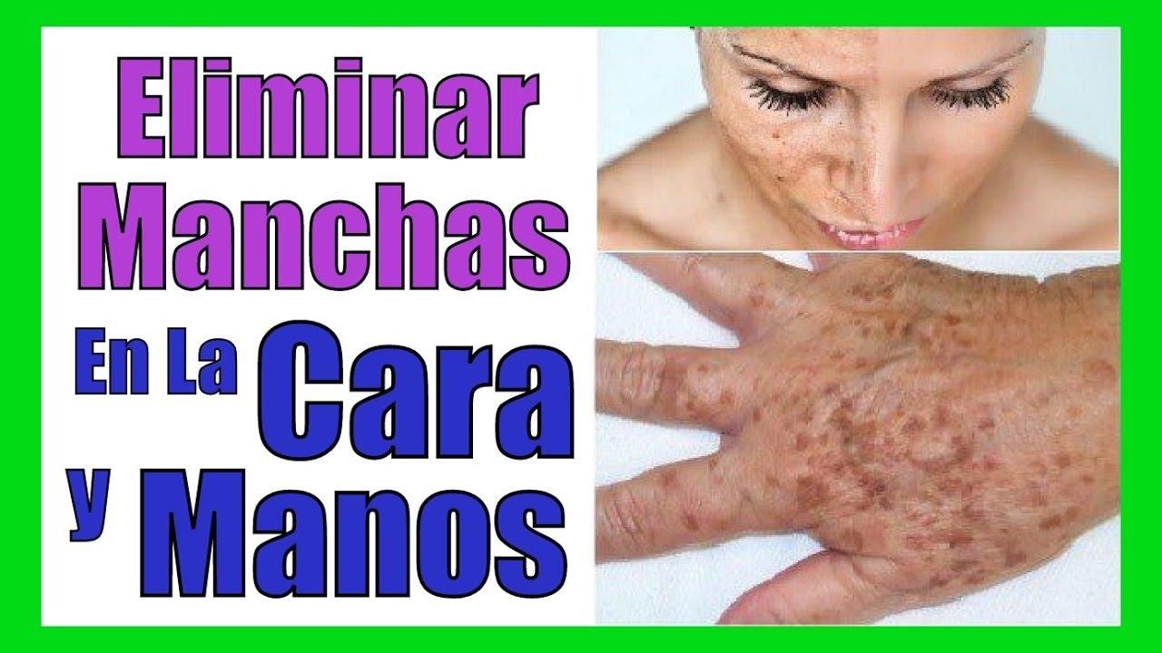 Quitar las manchas de la piel eliminar y borrar manchas dela cara y manos remedios caseros youtube - Como quitar manchas de la pared ...