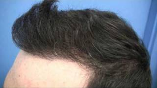 Hair Transplant by Dr Wong - 5833 Grafts - 1 Session
