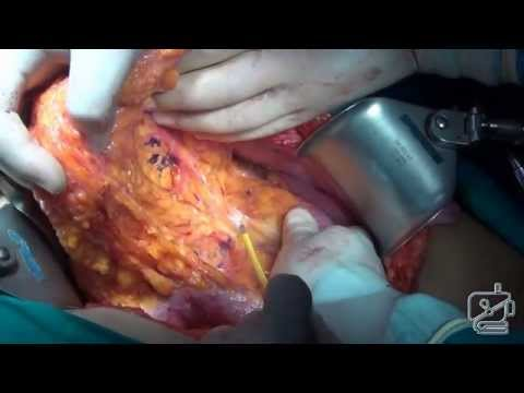 Resection of pancreas and celiac axis for locally advanced pancreatic cancer
