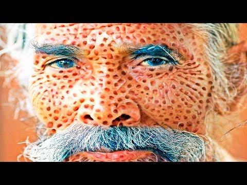 Lotus Pods Holes In Skin Poping