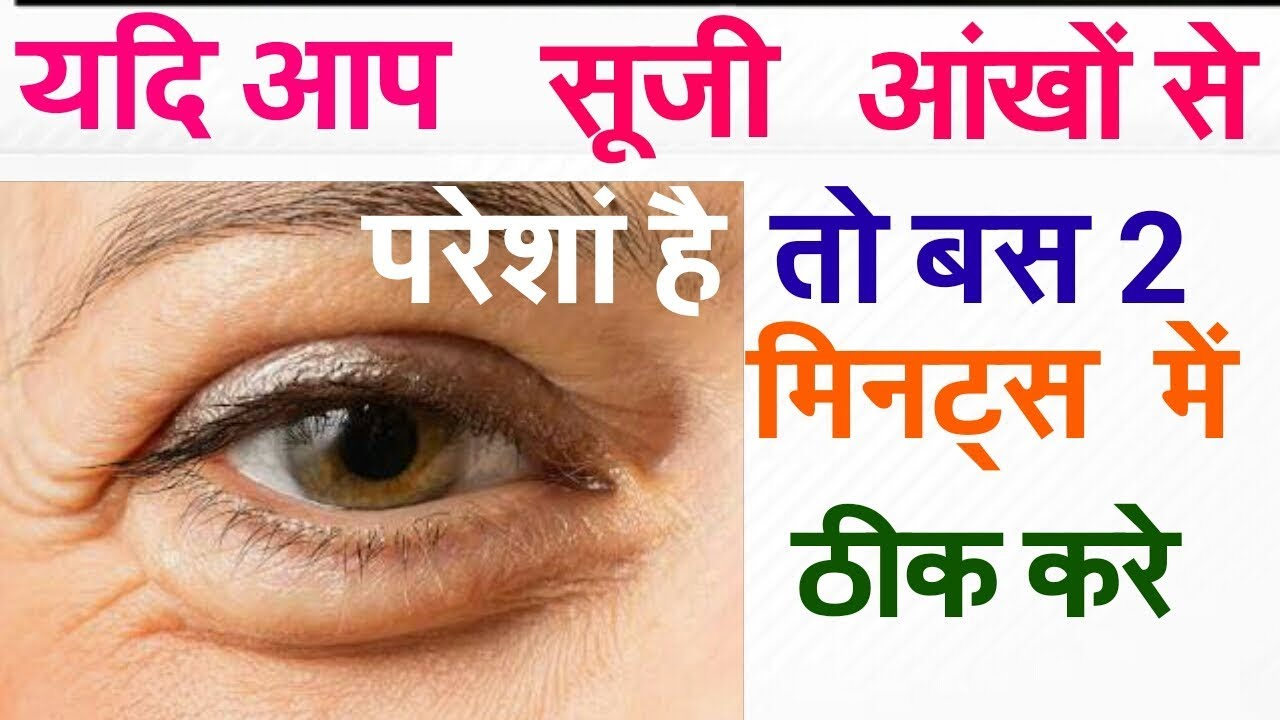 Very good treatment for under eyes dark circles|puffy eyes ...