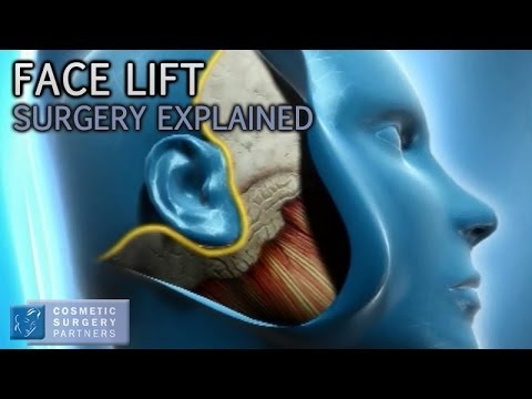 Face Lift explained - Cosmetic Surgery video animation