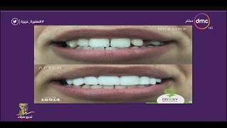 السفيرة عزيزة - د/ عايدة مصطفى : تقنية تجميل الأسنان بالكمبيوتر تعتبر مثل