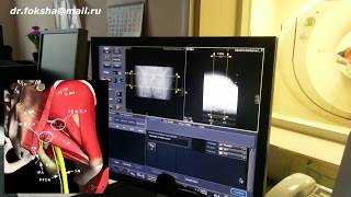 лечение Седалищного Нерва  Блокада под КТ  SCIATIC NERVE BLOCK
