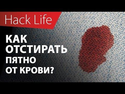 Как отстирать пятно от крови на одежде?