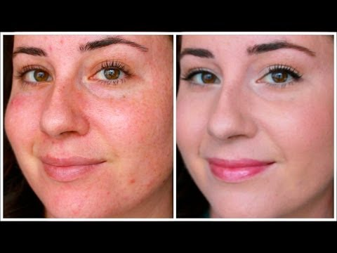 How To: Cover Redness from YouTube · Duration:  6 minutes 58 seconds