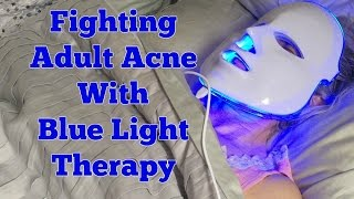 Fighting Adult Acne With Blue Light Therapy