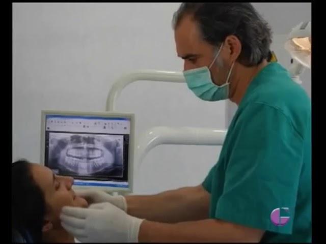 Complicaciones en Implantes Dentales - Tratamientos