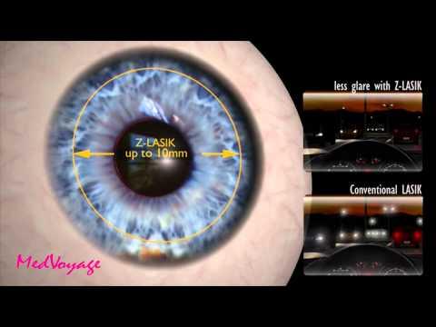 Femto Lasic Աչքի լազերային շտկում