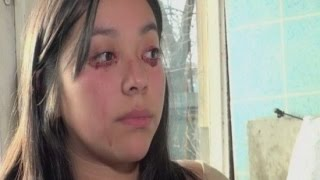 Mysterious Condition Causes Girl to Cry Tears of Blood- Yaritza Oliva