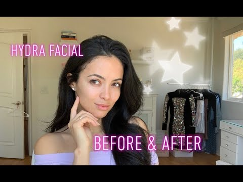 HYDRA FACIAL  FOR ACNE + BEFORE AND AFTER