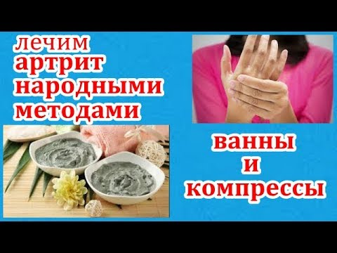 лечим артрит народными средствами.целебные свойства глины.