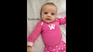 EVERYTHING YOU NEED TO KNOW ABOUT THE DOC BAND |  PLAGIOCEPHALY & TORTICOLLIS.