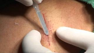 surgical wound closure.avi