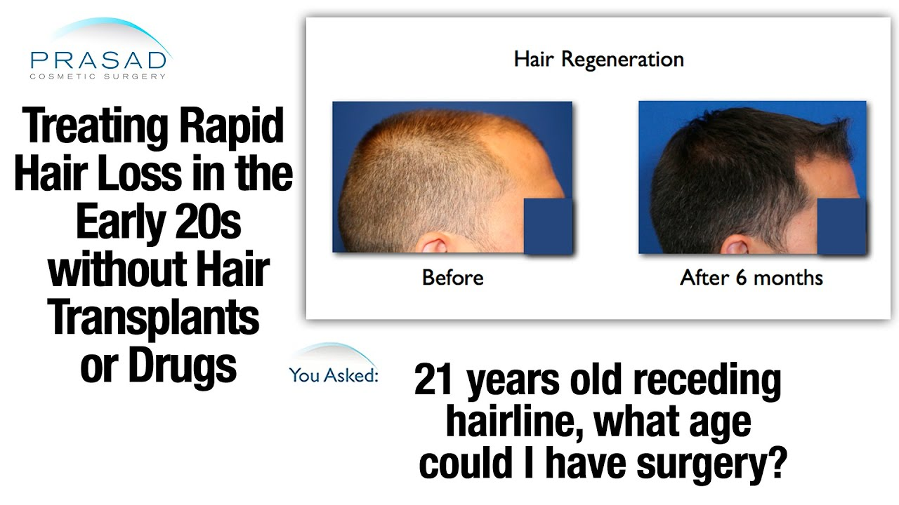 Hair Transplants Can't Stop Hair Loss in the 20s, but an ...