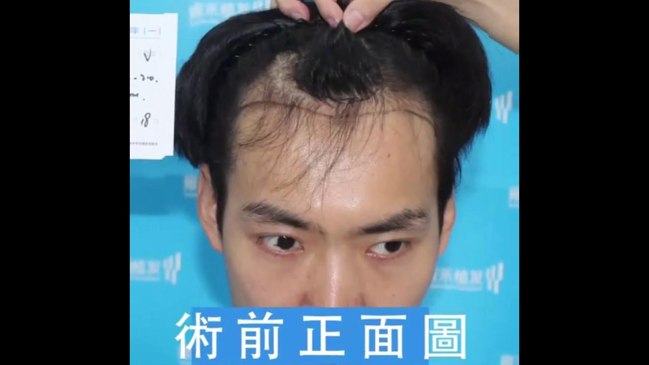 髮際線後退2450毛囊單位植髮成功!術後一年日記展示Yonghe hair transplant - YouTube