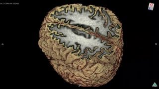 My Brain with 3T scanner