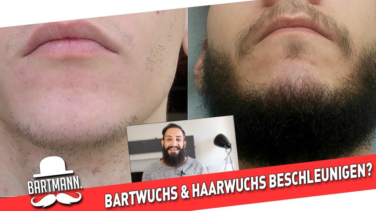 Minoxidil Für Bart
