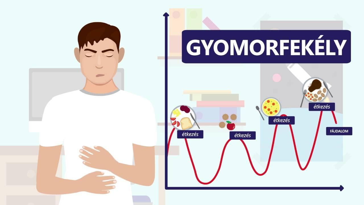 fájdalom okozhat gyomorfájást