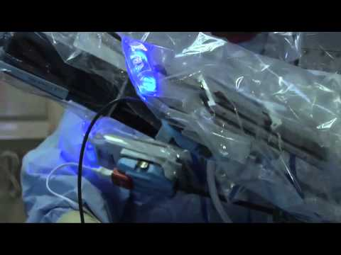 Video about how an Iowa hospital is preventing surgical site infections