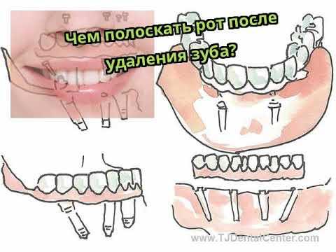 Болит десна после удаления зуба чем полоскать