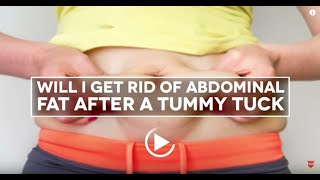 Will I Get Rid of Abdominal Fat After A Tummy Tuck? | Houston Plastic Surgery