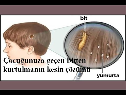 Bitlerden Kurtulmanin Kesin çözümü 100 çözüm Youtube