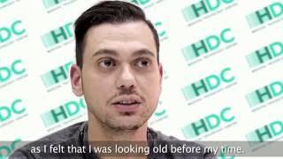HDC Hair Transplant Result testimonial – 2000 FUE on Hairline