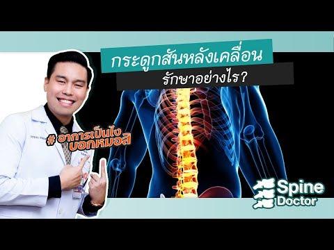 การรักษากระดูกสันหลังเคลื่อน