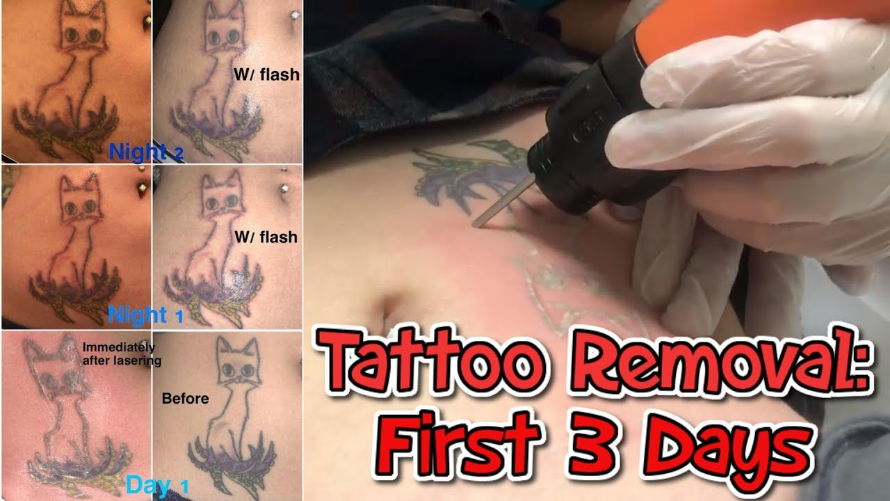 Tattoo Removal // First 3 Days // Why, How Much Did It Cost, Did It ...