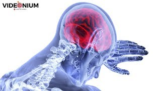 New Biomedical Cure for Memory Loss | Latest Research & Science News