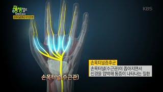 2tv 저녁 생생정보 - 닥터의 24시, 손목터널증후군! 예방법.20160201