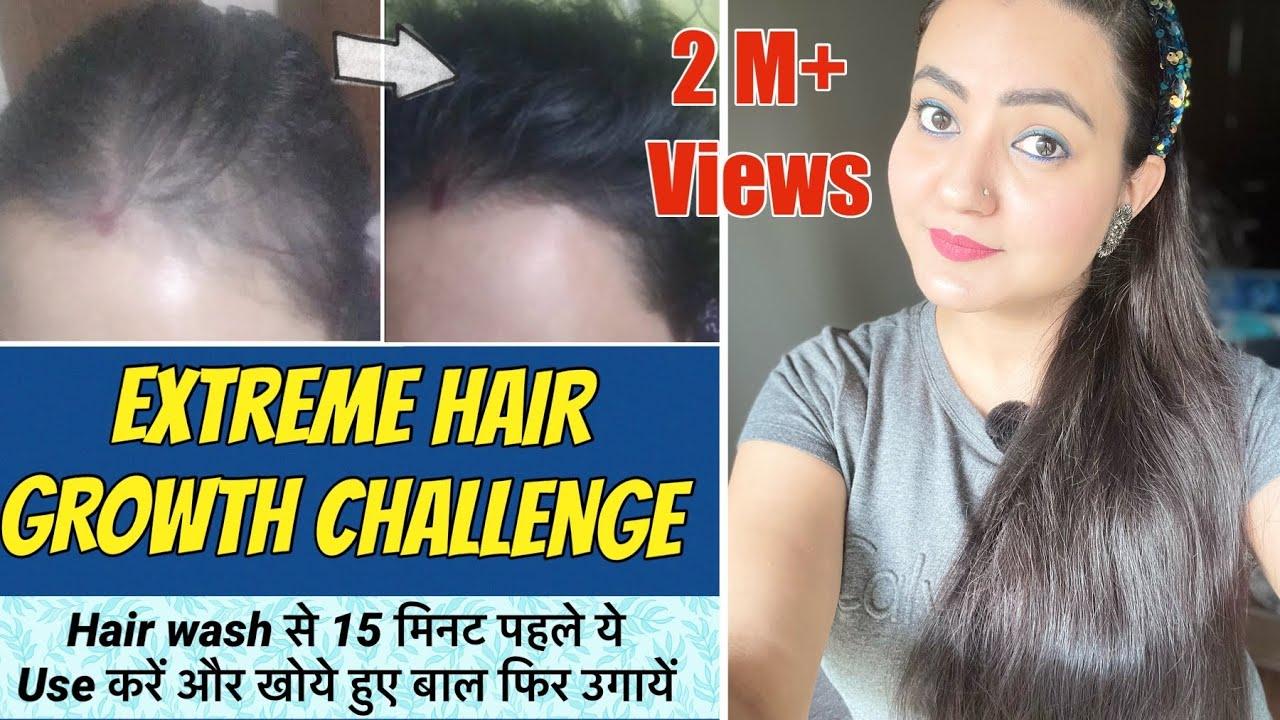 30 Days Hair Growth Challenge 2021 : Hair Wash करने से 15 मिनट पहले USE करें और खोये बाल वापस उगायें