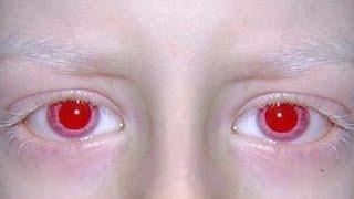 【緋の目】神秘的で神々しいアルビノの目【閲覧注意】